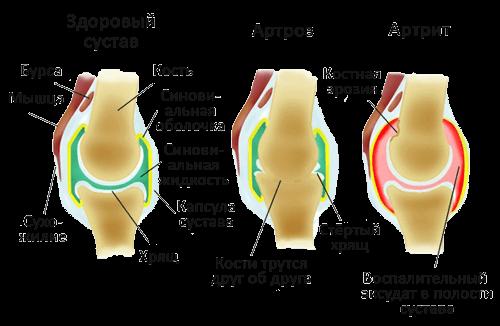 Как излечить артроз-артрит суставов можно востановить хрящевую ткань в суставах